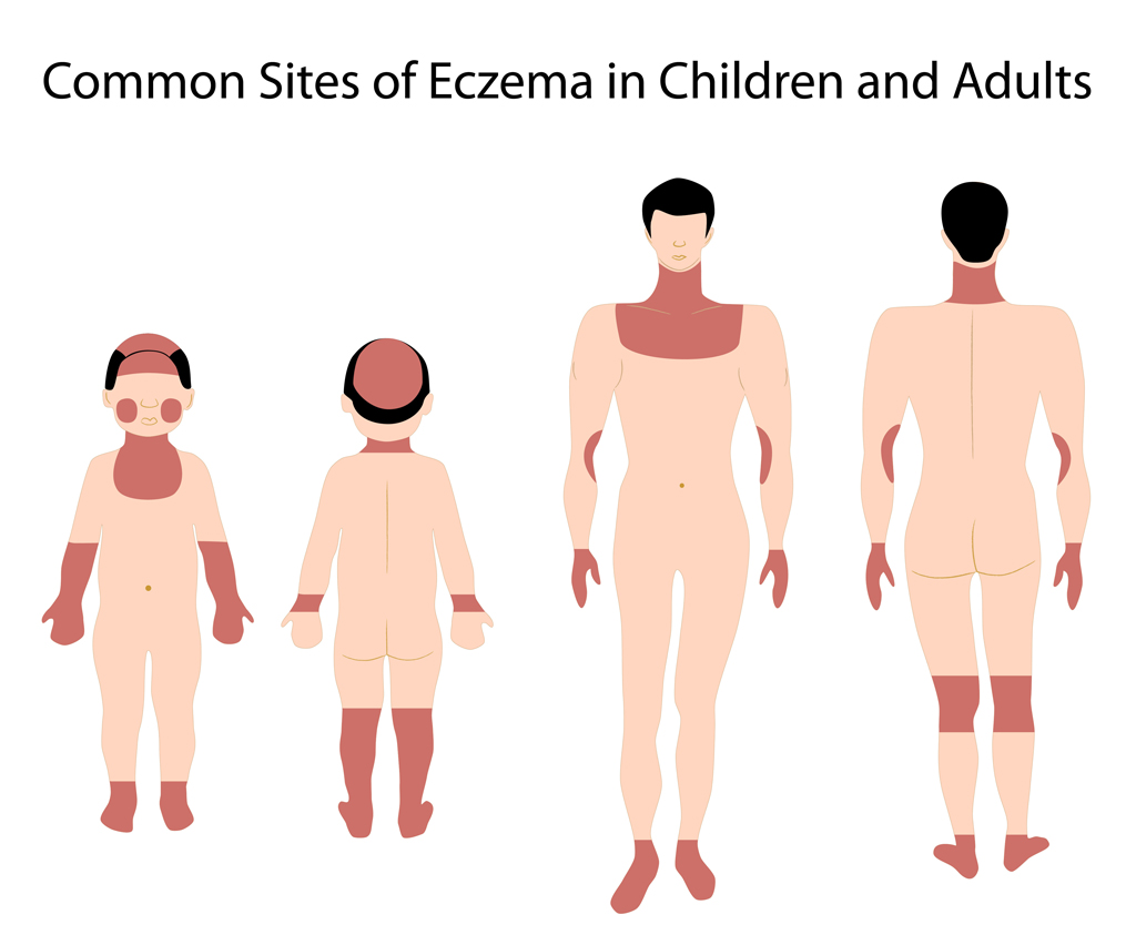 Eczema Atopic Dermatitis is a skin condition where patches of skin become inflamed, itchy, red, cracked, and rough skin