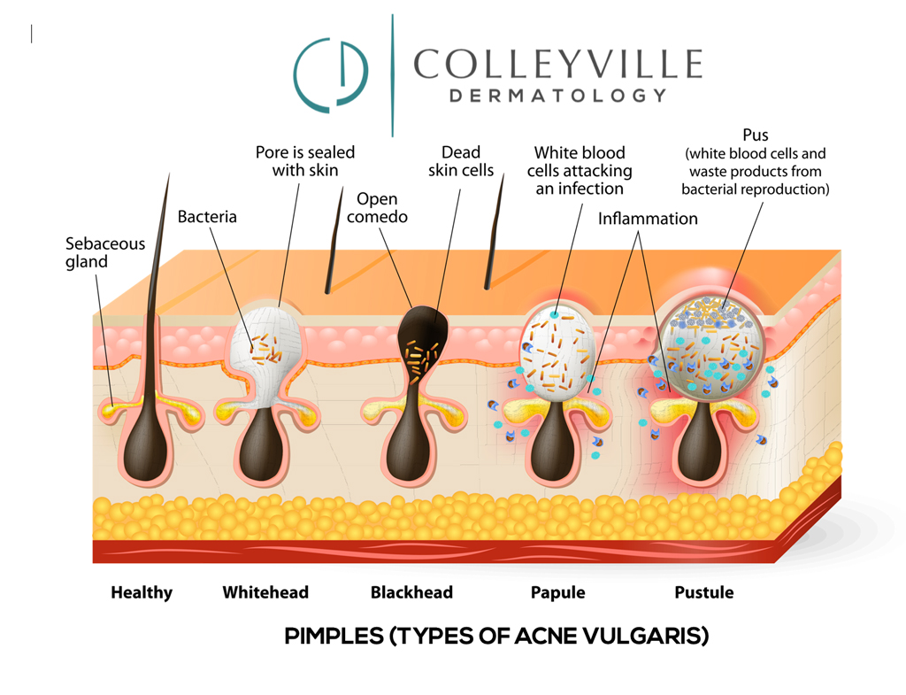Pediatric Dermatology Acne vulgaris