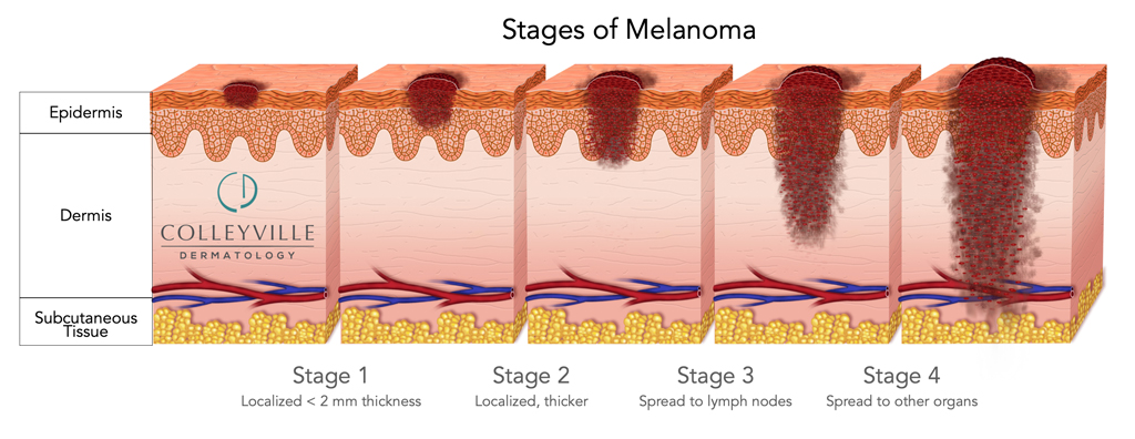 Malignant melanoma aggressive skin cancer that spreads ( metastasis) to other parts of the body and may be fatal if left untreated