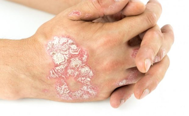 psoriasis treatment at Colleyville Dermatology