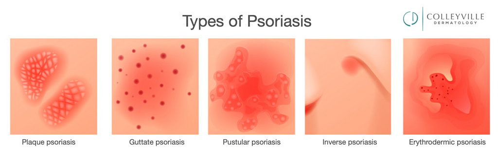 Psoriasis types Colleyville Dermatology