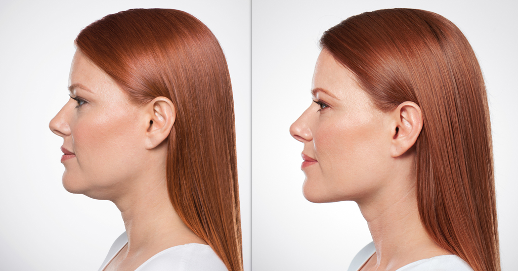 Kybella® or deoxycholic acid injection