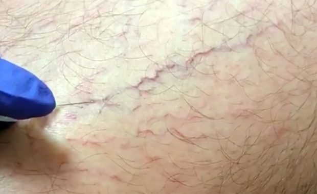 Sclerotherapy spider veins varicose veins
